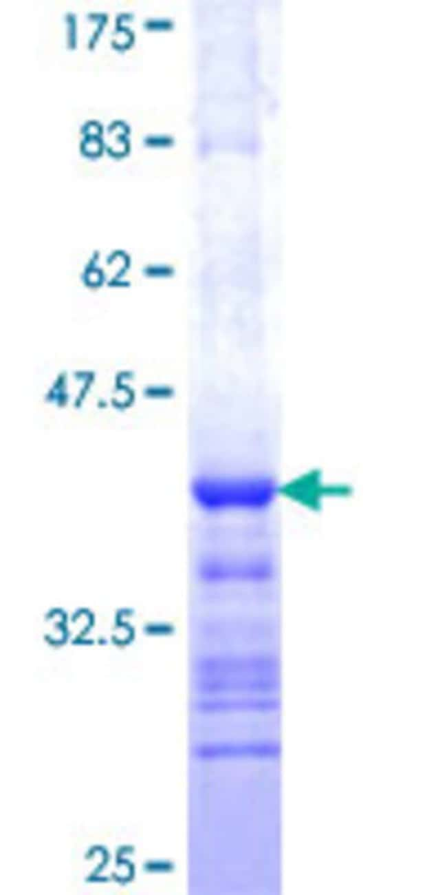 Abnova™Human PINK1 Partial ORF (AAH28215, 151 a.a. - 250 a.a.) Recombinant Protein with GST-tag at N-terminal 25μg Abnova™Human PINK1 Partial ORF (AAH28215, 151 a.a. - 250 a.a.) Recombinant Protein with GST-tag at N-terminal