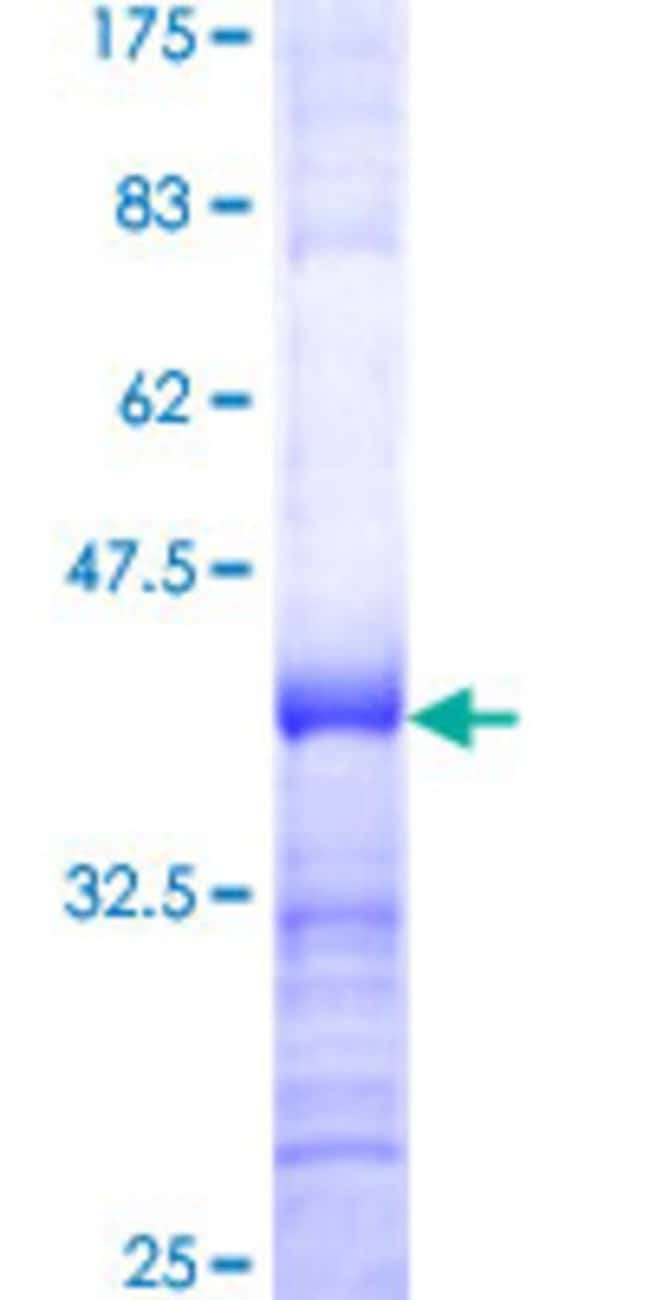 AbnovaHuman UPF3A Partial ORF (NP_075387, 382 a.a. - 475 a.a.) Recombinant