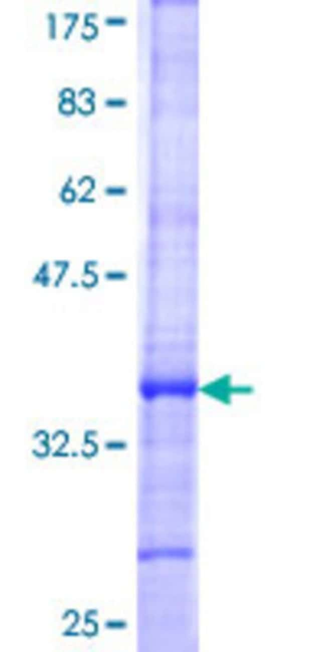 AbnovaHuman WNK1 Partial ORF (NP_061852, 296 a.a. - 384 a.a.) Recombinant