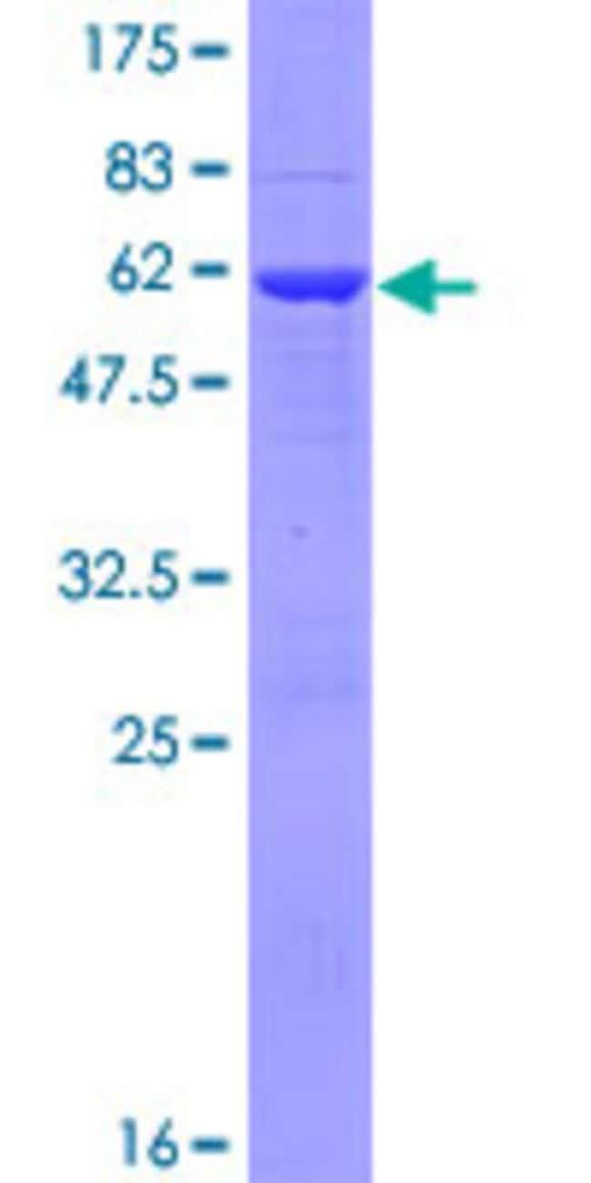 AbnovaHuman PYCRL Full-length ORF (AAH07993.1, 1 a.a. - 274 a.a.) Recombinant