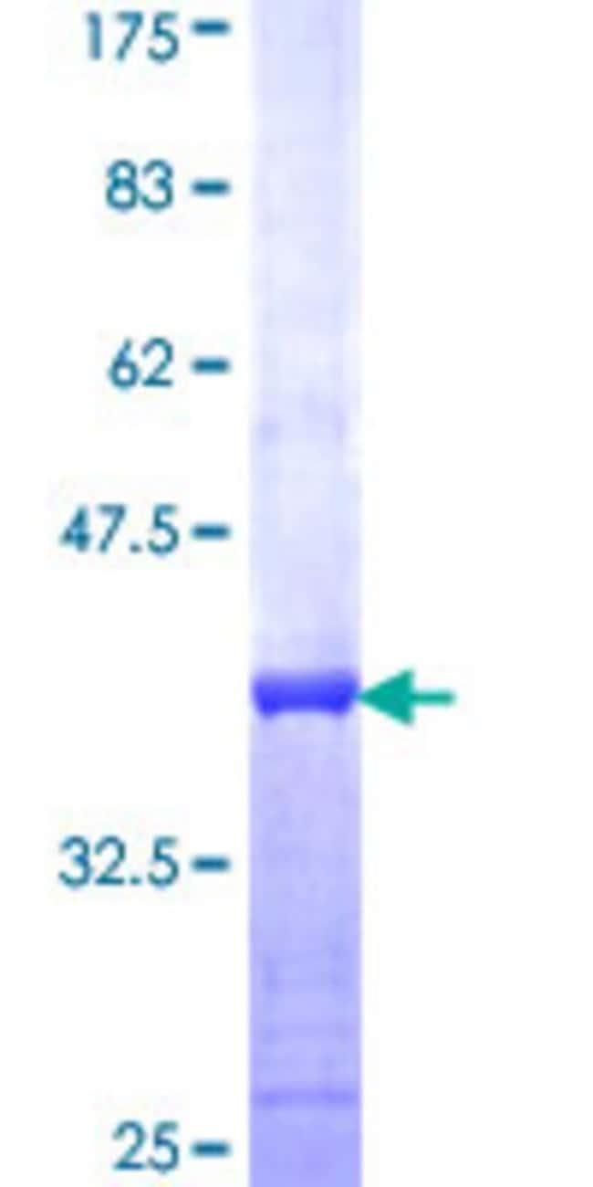 AbnovaHuman PYCRL Partial ORF (NP_075566, 32 a.a. - 131 a.a.) Recombinant