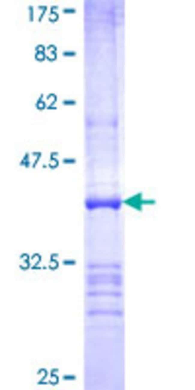 AbnovaHuman UBE2Z Partial ORF (NP_075567, 136 a.a. - 225 a.a.) Recombinant