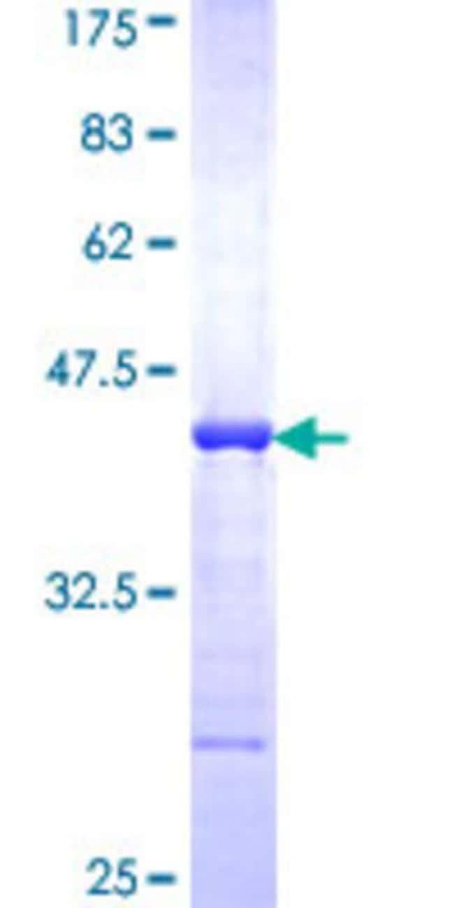 AbnovaHuman WNK3 Partial ORF (NP_065973, 1 a.a. - 100 a.a.) Recombinant