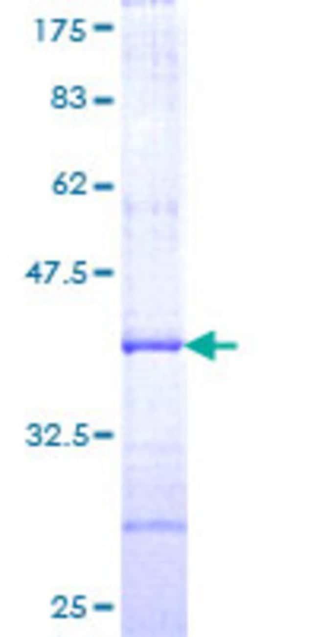 AbnovaHuman AACS Partial ORF (NP_076417, 574 a.a. - 672 a.a.) Recombinant