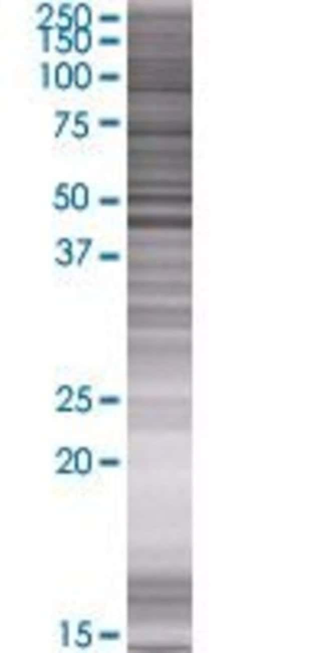 AbnovaAACS 293T Cell Transient Overexpression Lysate (Denatured) 100μL:Protein