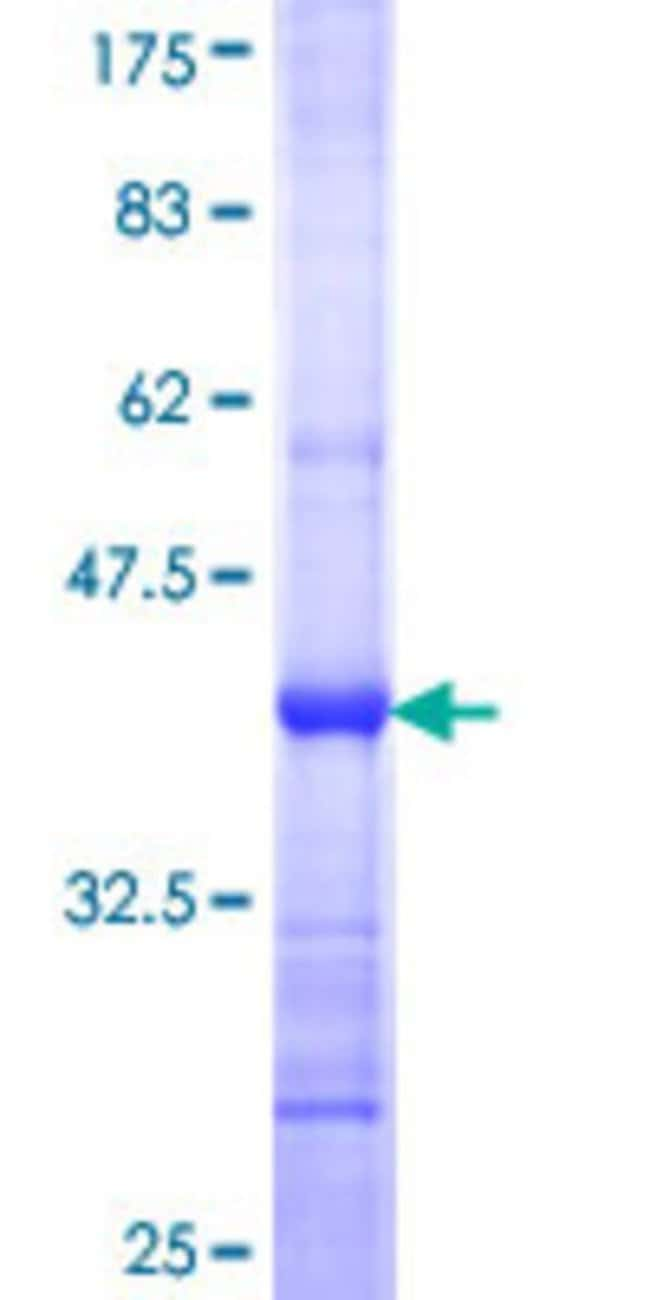 AbnovaHuman DUSP26 Partial ORF (NP_076930, 1 a.a. - 110 a.a.) Recombinant