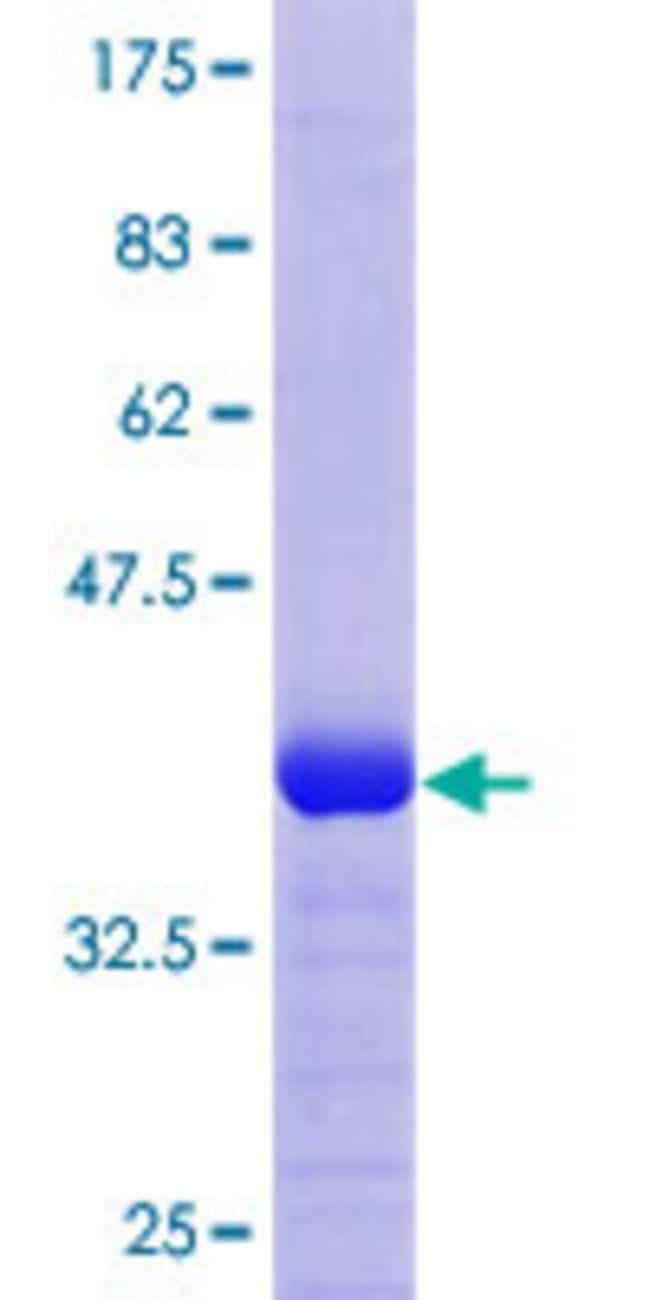 AbnovaHuman CRELD1 Partial ORF (NP_056328.2, 245 a.a. - 344 a.a.) Recombinant
