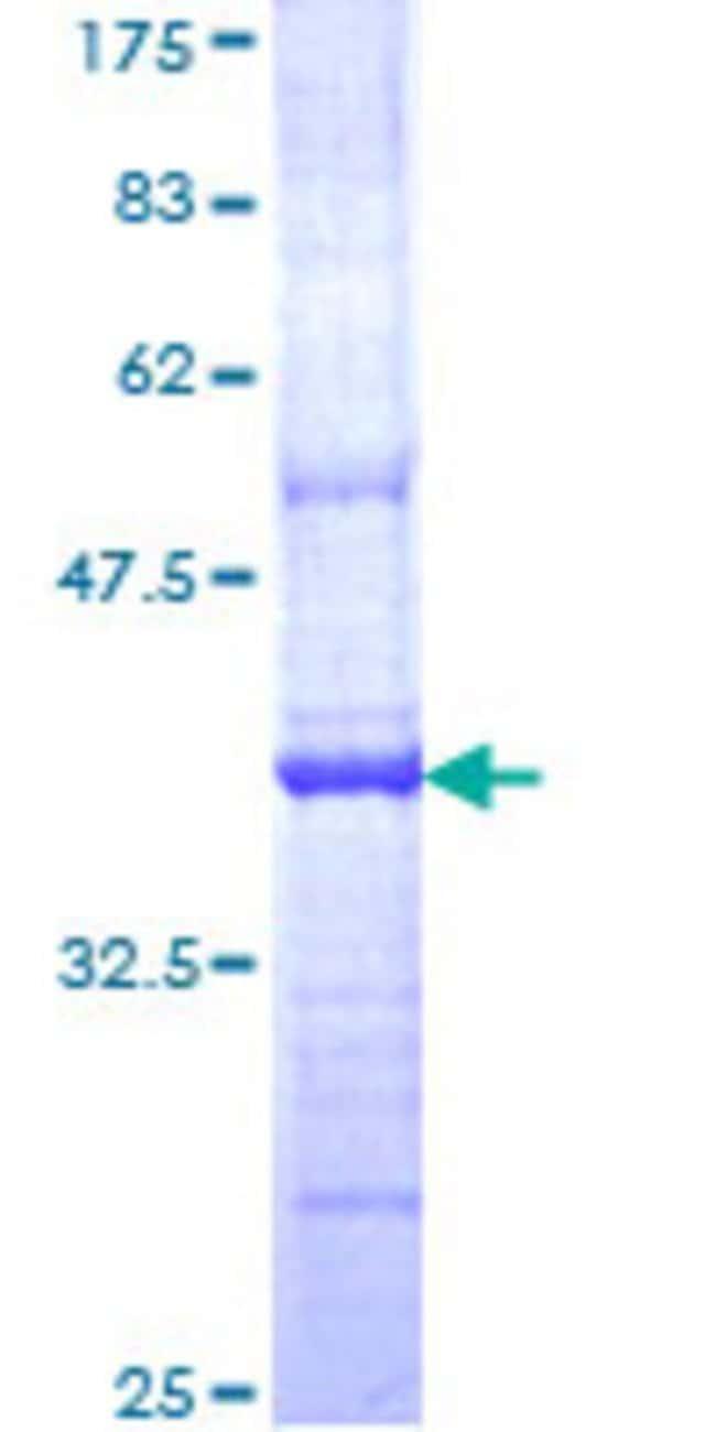 AbnovaHuman OTUB2 Partial ORF (NP_075601, 126 a.a. - 234 a.a.) Recombinant