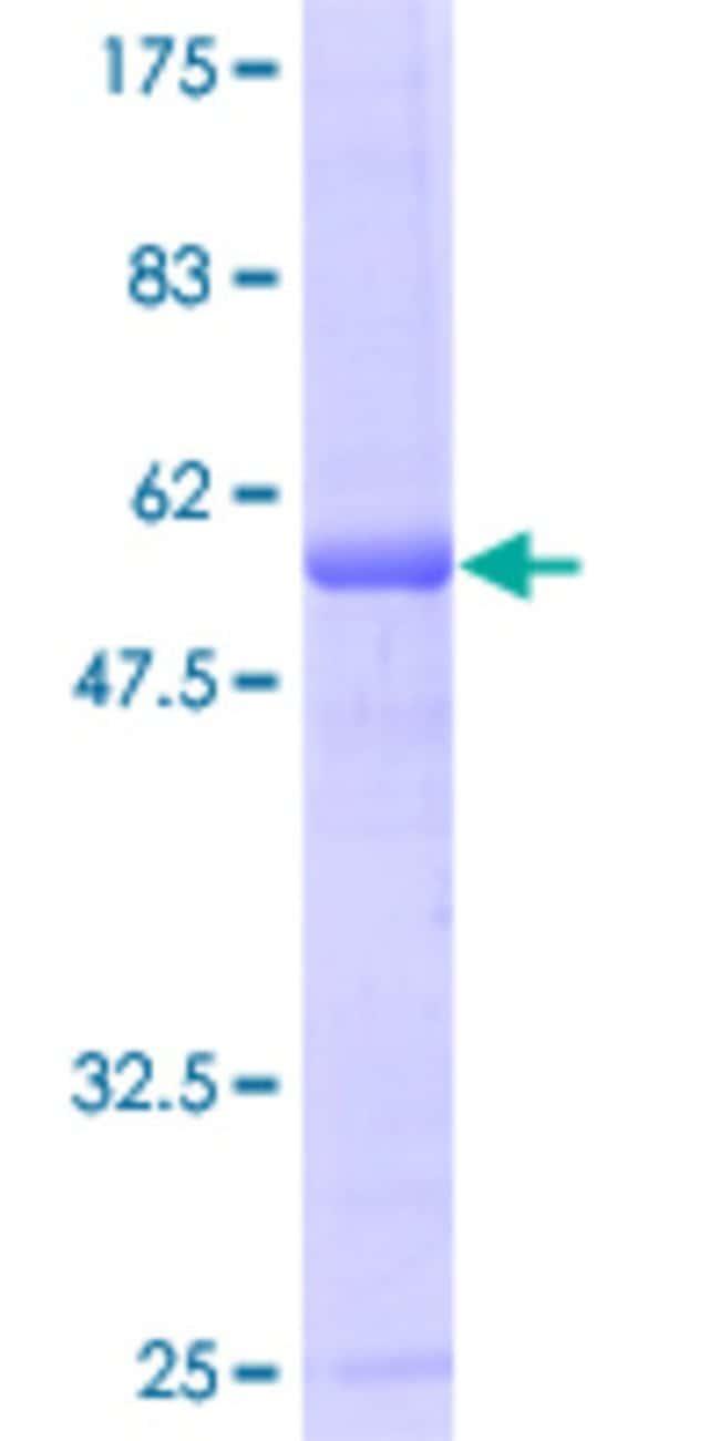 AbnovaHuman MIS12 Full-length ORF (AAH00229, 1 a.a. - 205 a.a.) Recombinant