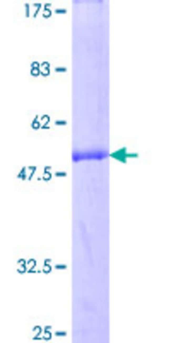 AbnovaHuman MIS12 Full-length ORF (NP_076944.1, 1 a.a. - 205 a.a.) Recombinant