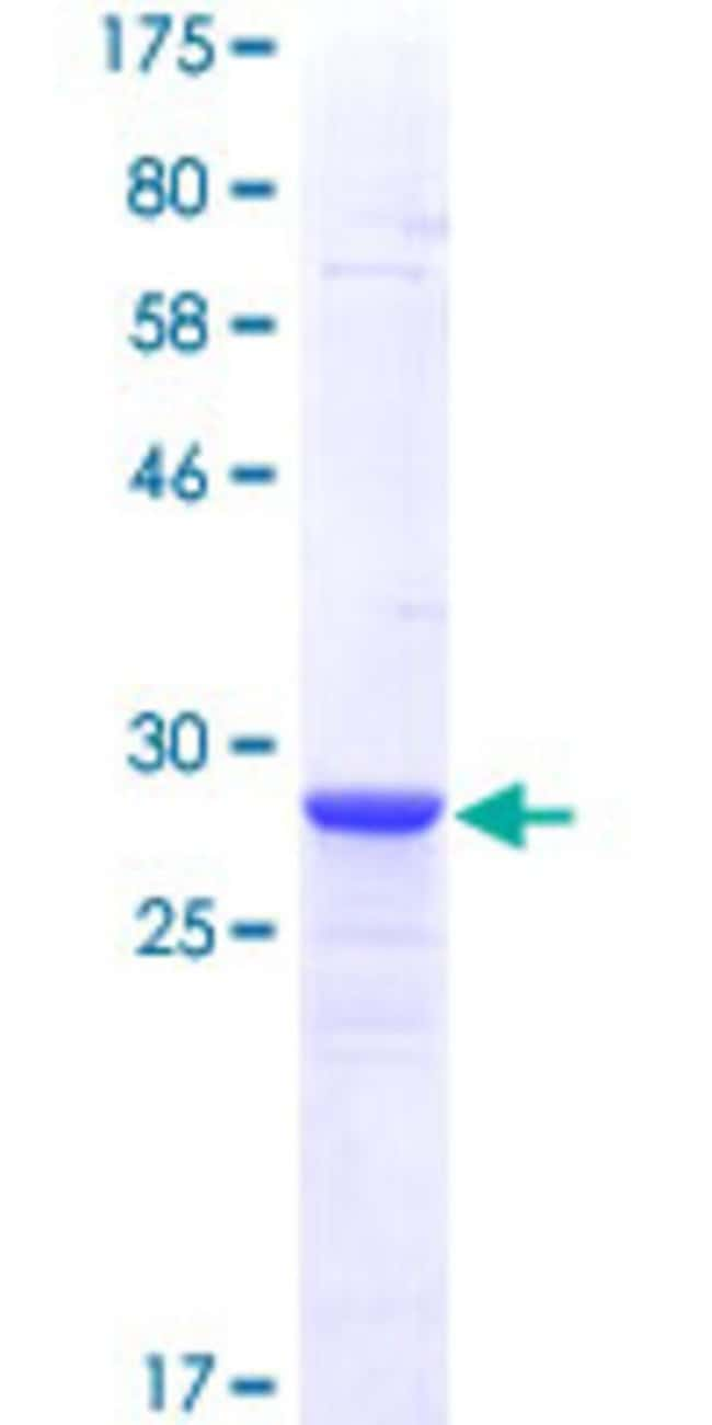 Abnova™Human METRN Partial ORF (NP_076947, 118 a.a. - 178 a.a.) Recombinant Protein with GST-tag at N-terminal 25μg Abnova™Human METRN Partial ORF (NP_076947, 118 a.a. - 178 a.a.) Recombinant Protein with GST-tag at N-terminal
