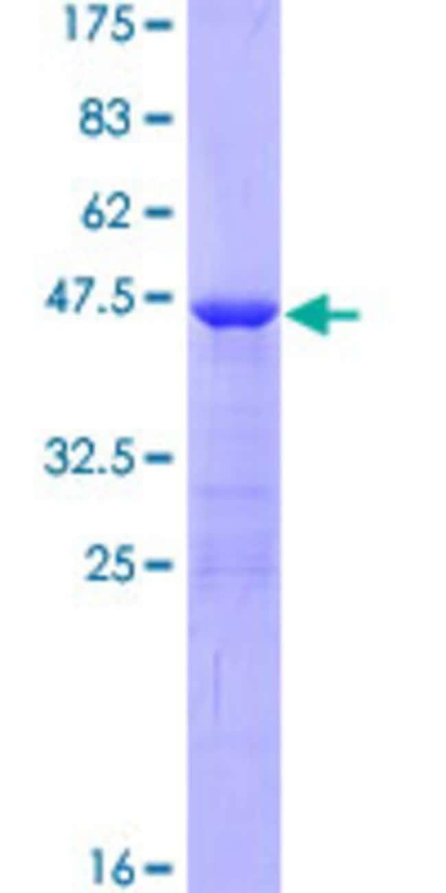 AbnovaHuman AHNAK Full-length ORF (NP_076965.2, 1 a.a. - 149 a.a.) Recombinant