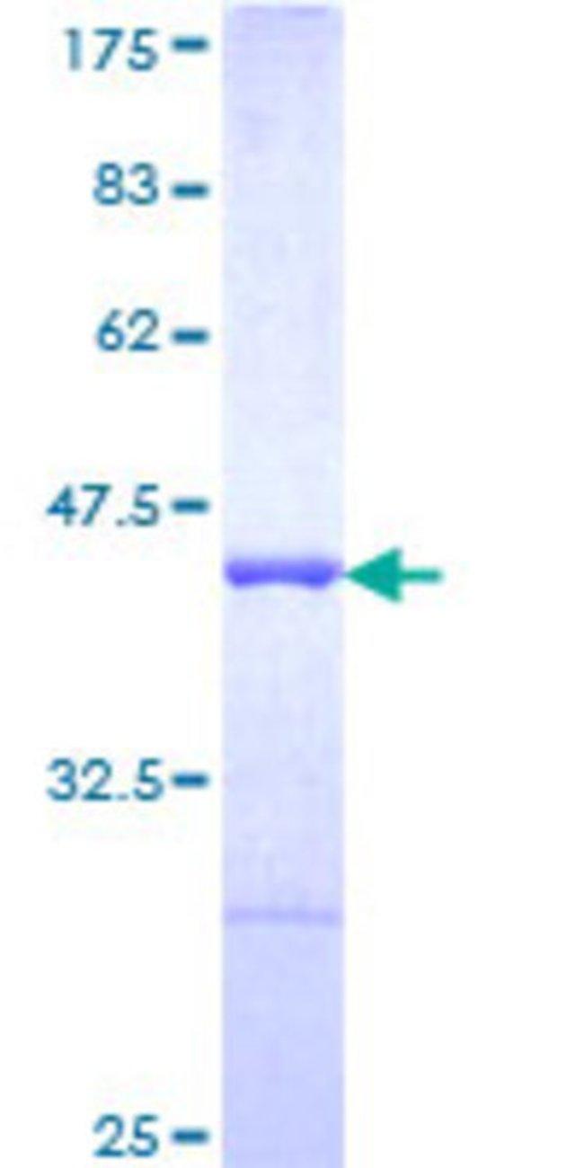 AbnovaHuman AHNAK Partial ORF (NP_076965, 1 a.a. - 100 a.a.) Recombinant