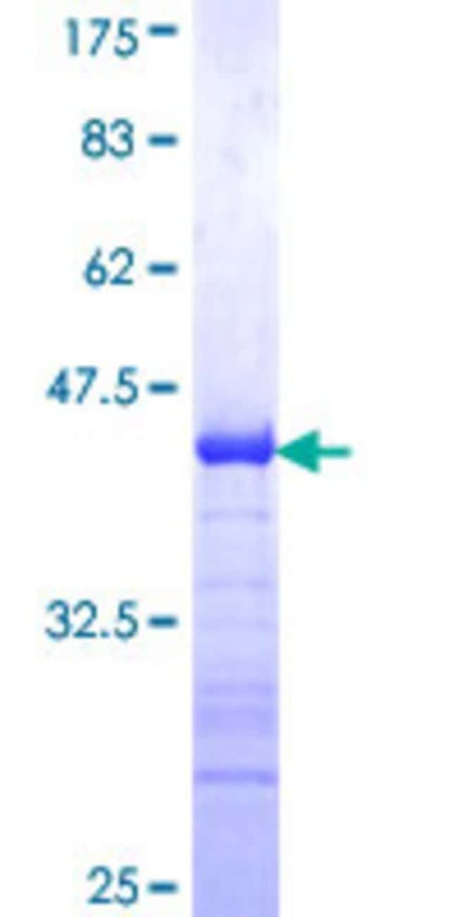 Abnova™Human MGC2749 Partial ORF (NP_076974, 81 a.a. - 176 a.a.) Recombinant Protein with GST-tag at N-terminal 10μg Abnova™Human MGC2749 Partial ORF (NP_076974, 81 a.a. - 176 a.a.) Recombinant Protein with GST-tag at N-terminal
