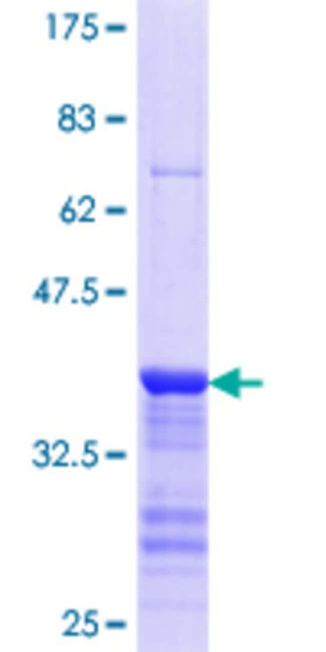 Abnova™Human SECISBP2 Partial ORF (NP_076982.3, 106 a.a. - 205 a.a.) Recombinant Protein with GST-tag at N-terminal 25μg Abnova™Human SECISBP2 Partial ORF (NP_076982.3, 106 a.a. - 205 a.a.) Recombinant Protein with GST-tag at N-terminal