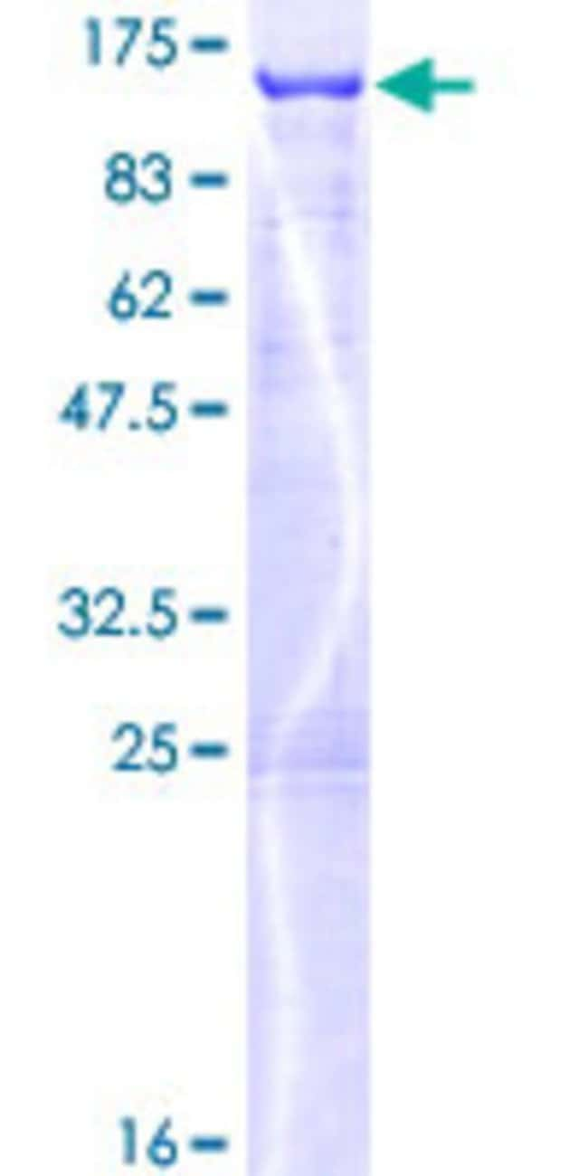 AbnovaHuman MLPH Full-length ORF (NP_077006.1, 1 a.a. - 600 a.a.) Recombinant