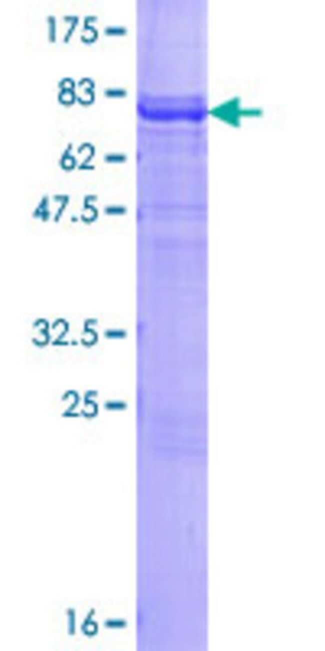 Abnova™Human CARD14 Full-length ORF (NP_438170.1, 1 a.a. - 434 a.a.) Recombinant Protein with GST-tag at N-terminal 10μg Abnova™Human CARD14 Full-length ORF (NP_438170.1, 1 a.a. - 434 a.a.) Recombinant Protein with GST-tag at N-terminal