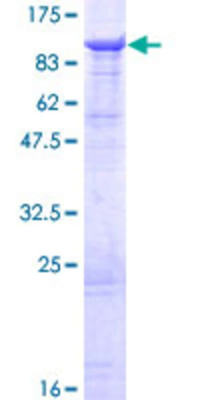 Abnova™Human DHX58 Full-length ORF (AAH14949.1, 1 a.a. - 678 a.a.) Recombinant Protein with GST-tag at N-terminal 25μg Abnova™Human DHX58 Full-length ORF (AAH14949.1, 1 a.a. - 678 a.a.) Recombinant Protein with GST-tag at N-terminal