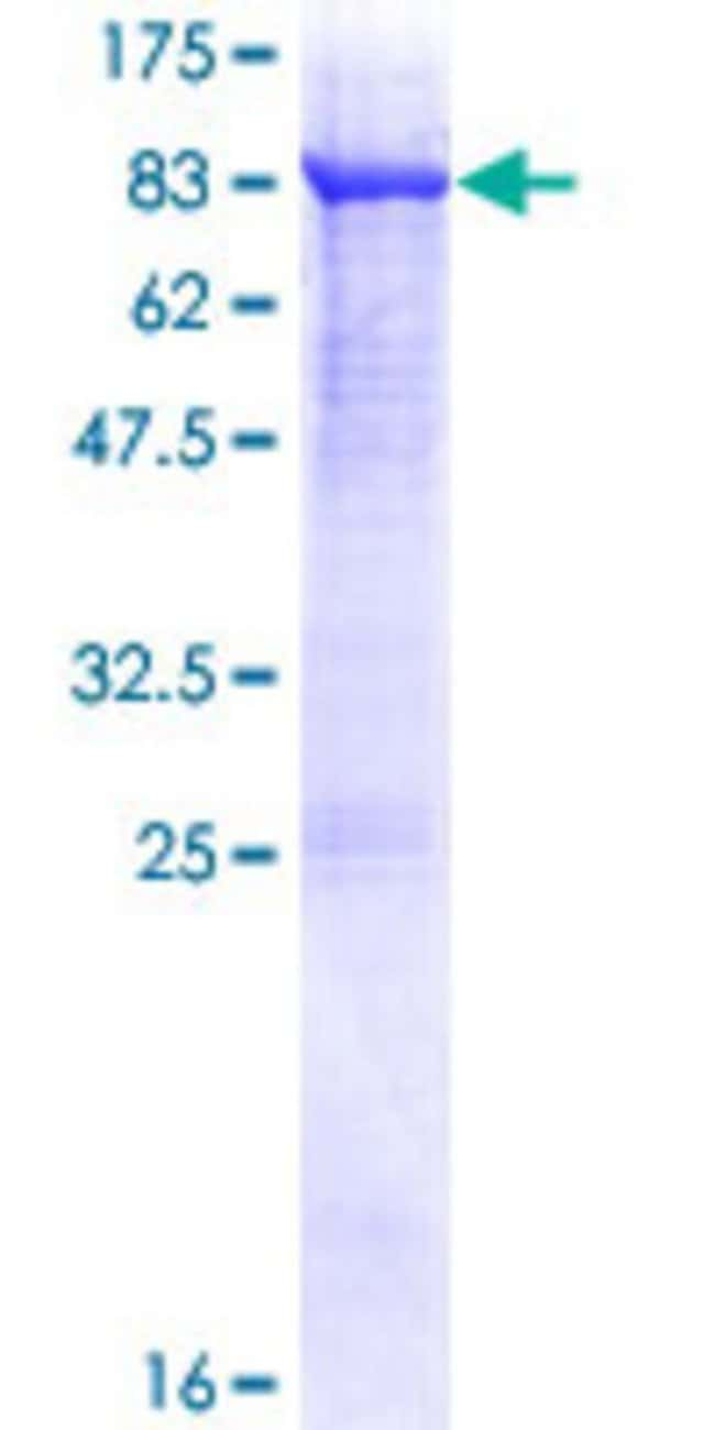 Abnova™Human FSD1 Full-length ORF (NP_077309.1, 1 a.a. - 496 a.a.) Recombinant Protein with GST-tag at N-terminal 25μg Abnova™Human FSD1 Full-length ORF (NP_077309.1, 1 a.a. - 496 a.a.) Recombinant Protein with GST-tag at N-terminal