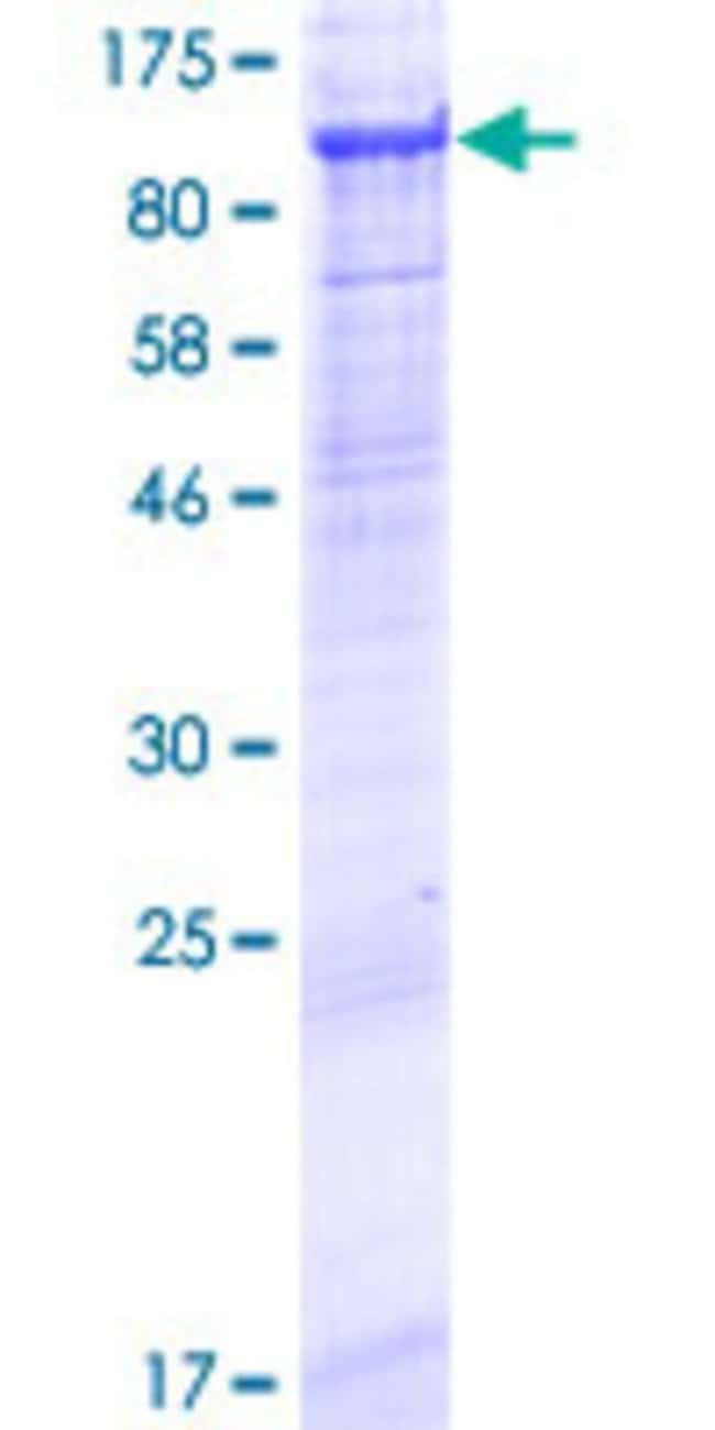Abnova™Human MMEL1 Full-length ORF (AAI01031.1, 1 a.a. - 779 a.a.) Recombinant Protein with GST-tag at N-terminal 25μg Abnova™Human MMEL1 Full-length ORF (AAI01031.1, 1 a.a. - 779 a.a.) Recombinant Protein with GST-tag at N-terminal