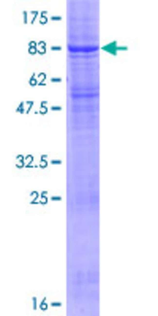 Abnova™Human RNF128 Full-length ORF (NP_919445.1, 1 a.a. - 428 a.a.) Recombinant Protein with GST-tag at N-terminal 25μg Abnova™Human RNF128 Full-length ORF (NP_919445.1, 1 a.a. - 428 a.a.) Recombinant Protein with GST-tag at N-terminal