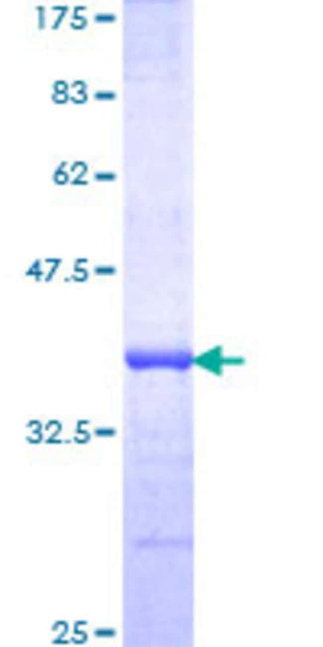 Abnova™Human C13orf7 Partial ORF (NP_078822, 1 a.a. - 95 a.a.) Recombinant Protein with GST-tag at N-terminal 10μg Abnova™Human C13orf7 Partial ORF (NP_078822, 1 a.a. - 95 a.a.) Recombinant Protein with GST-tag at N-terminal