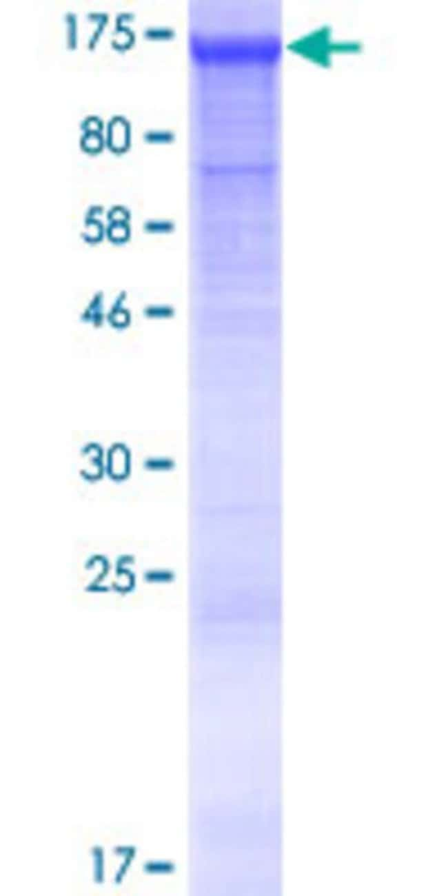 Abnova Human LRRIQ2 Full-length ORF (NP_078824.2, 1 a.a. - 865 a.a.) Recombinant