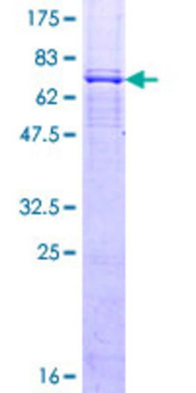 Abnova Human LASS4 Full-length ORF (NP_078828.1, 1 a.a. - 394 a.a.) Recombinant