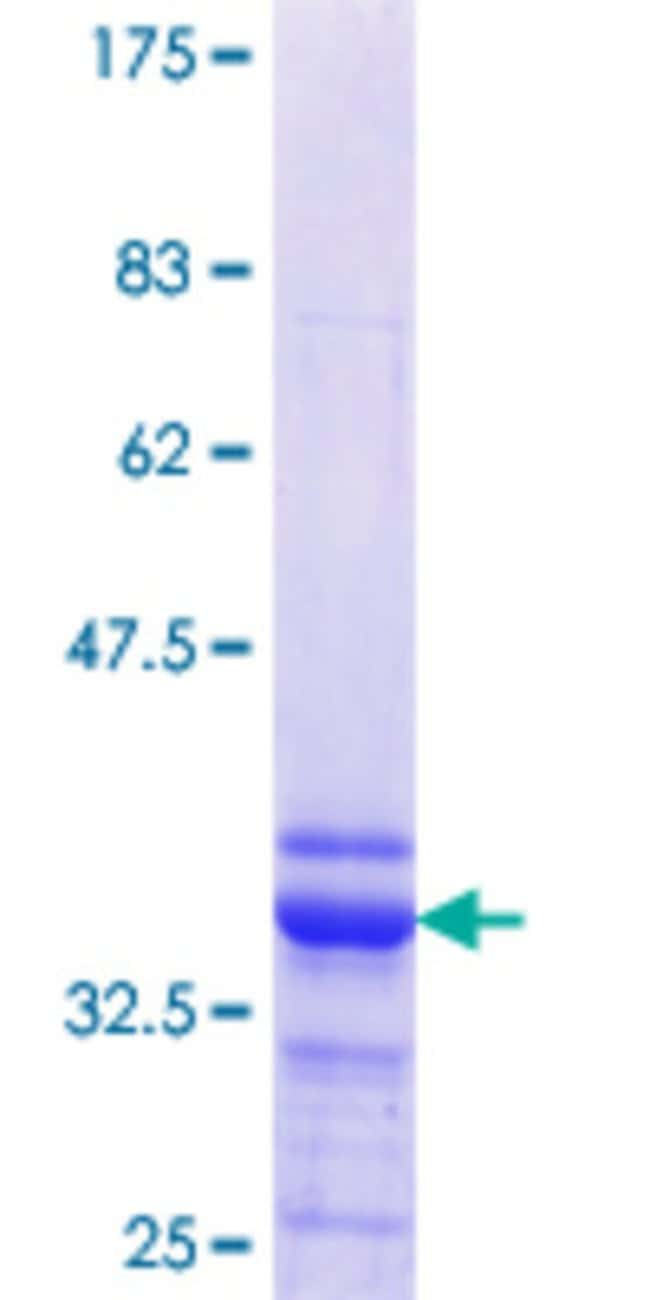 Abnova™Human GALNT14 Partial ORF (NP_078848.2, 494 a.a. - 551 a.a.) Recombinant Protein with GST-tag at N-terminal 10μg Abnova™Human GALNT14 Partial ORF (NP_078848.2, 494 a.a. - 551 a.a.) Recombinant Protein with GST-tag at N-terminal