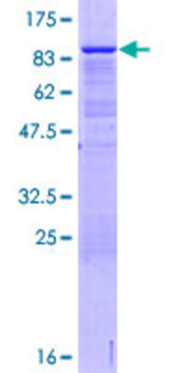 Abnova™Human OGFRL1 Full-length ORF (AAH18688.1, 1 a.a. - 450 a.a.) Recombinant Protein with GST-tag at N-terminal 25μg Abnova™Human OGFRL1 Full-length ORF (AAH18688.1, 1 a.a. - 450 a.a.) Recombinant Protein with GST-tag at N-terminal
