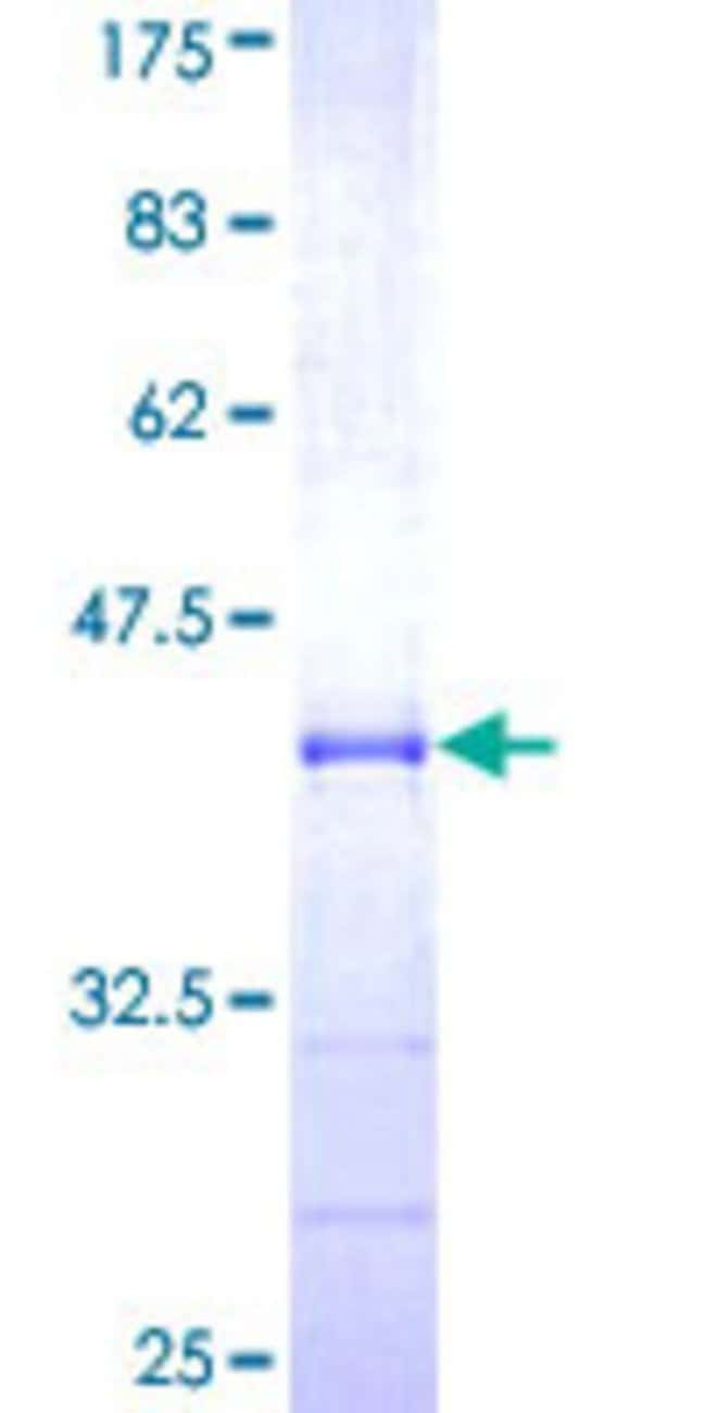 Abnova™Human TBL1XR1 Partial ORF (NP_071347, 81 a.a. - 178 a.a.) Recombinant Protein with GST-tag at N-terminal 25μg Abnova™Human TBL1XR1 Partial ORF (NP_071347, 81 a.a. - 178 a.a.) Recombinant Protein with GST-tag at N-terminal