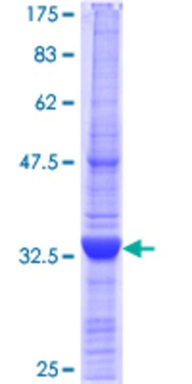 Abnova™Human ELMO3 Partial ORF (AAH34410.1, 1 a.a. - 100 a.a.) Recombinant Protein with GST-tag at N-terminal 10μg Abnova™Human ELMO3 Partial ORF (AAH34410.1, 1 a.a. - 100 a.a.) Recombinant Protein with GST-tag at N-terminal