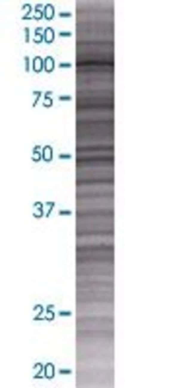 Abnova IQCA 293T Cell Transient Overexpression Lysate (Denatured) 100µL:Life
