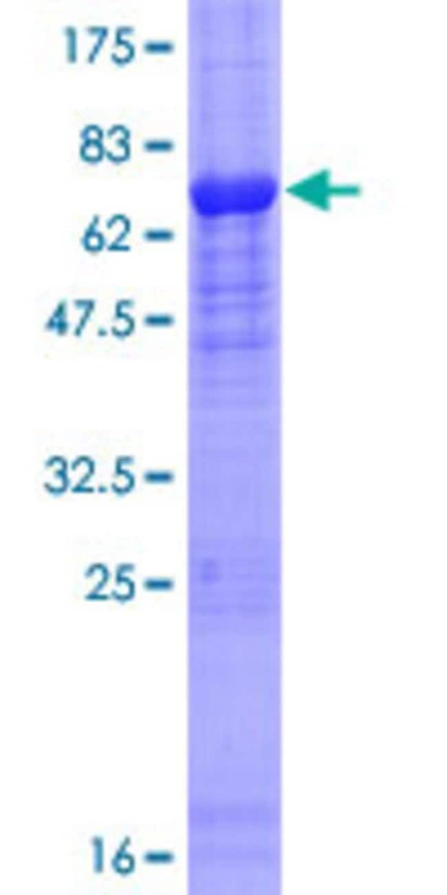 Abnova™Human FBXO31 Full-length ORF (AAH12748.1, 1 a.a. - 367 a.a.) Recombinant Protein with GST-tag at N-terminal 10μg Abnova™Human FBXO31 Full-length ORF (AAH12748.1, 1 a.a. - 367 a.a.) Recombinant Protein with GST-tag at N-terminal