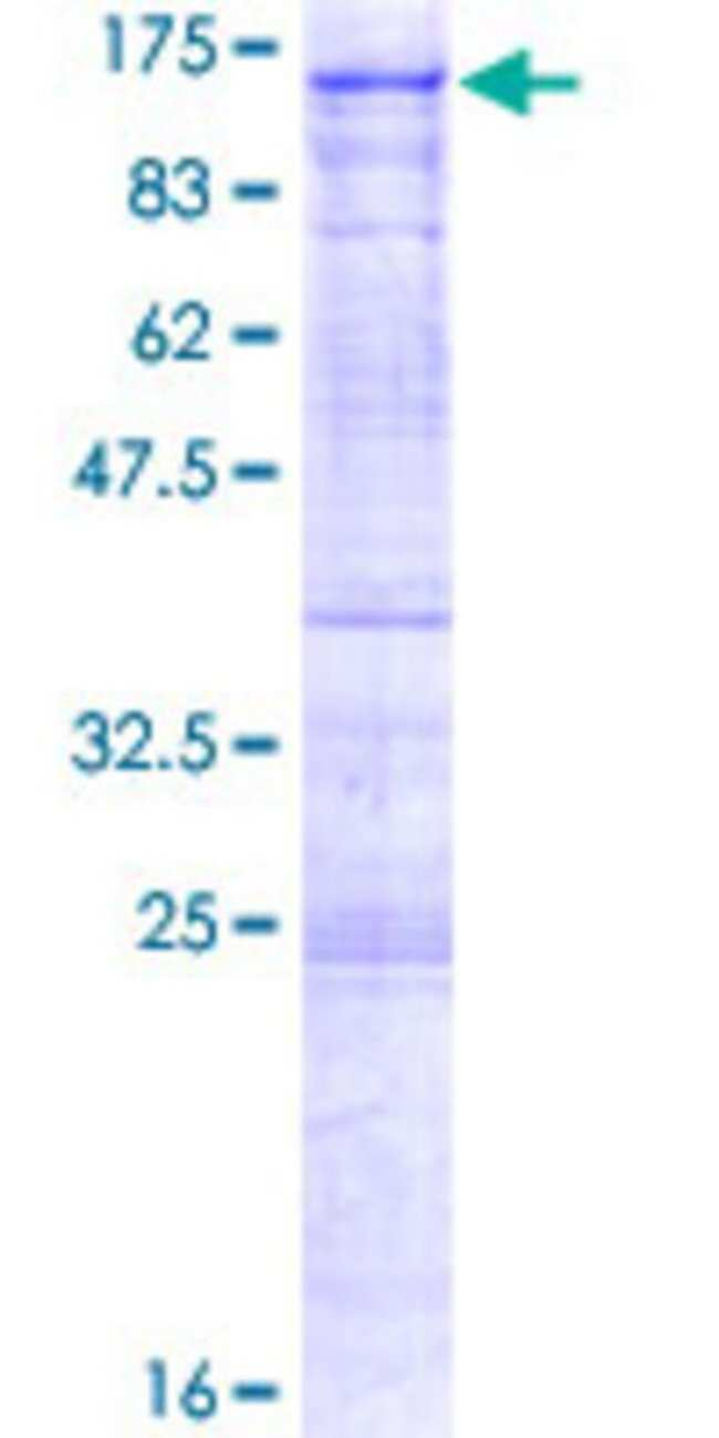 AbnovaHuman ALS2CR8 Full-length ORF (NP_079020.12, 1 a.a. - 718 a.a.) Recombinant
