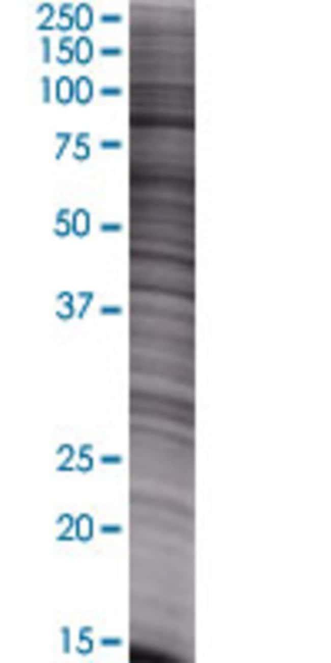 AbnovaALS2CR8 293T Cell Transient Overexpression Lysate (Denatured) 100μL:Protein