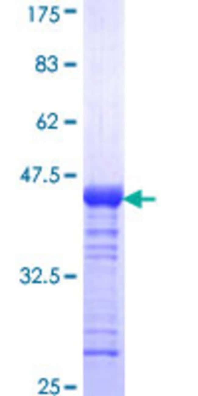 Abnova™Human EHMT1 Partial ORF (NP_079033, 1 a.a. - 100 a.a.) Recombinant Protein with GST-tag at N-terminal 10μg Abnova™Human EHMT1 Partial ORF (NP_079033, 1 a.a. - 100 a.a.) Recombinant Protein with GST-tag at N-terminal