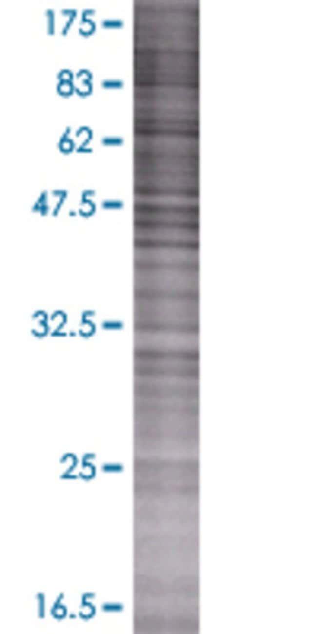 Abnova JMJD5 293T Cell Transient Overexpression Lysate (Denatured) 100µL:Life