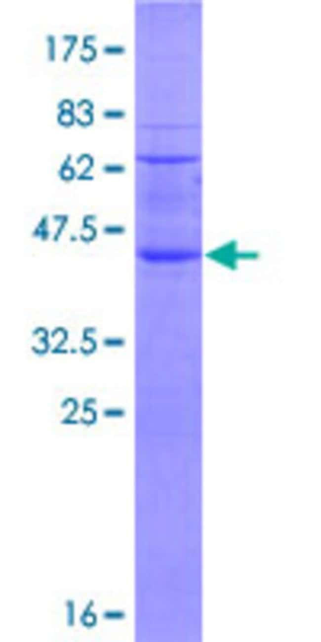 Abnova™Human RNF122 Full-length ORF (NP_079063.2, 1 a.a. - 155 a.a.) Recombinant Protein with GST-tag at N-terminal 10μg Abnova™Human RNF122 Full-length ORF (NP_079063.2, 1 a.a. - 155 a.a.) Recombinant Protein with GST-tag at N-terminal
