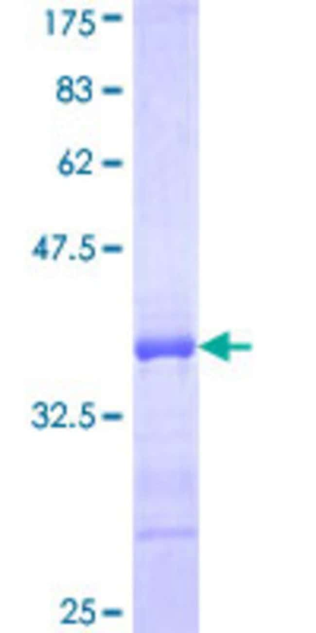 Abnova™Human RNF122 Partial ORF (NP_079063, 61 a.a. - 155 a.a.) Recombinant Protein with GST-tag at N-terminal 25μg Abnova™Human RNF122 Partial ORF (NP_079063, 61 a.a. - 155 a.a.) Recombinant Protein with GST-tag at N-terminal
