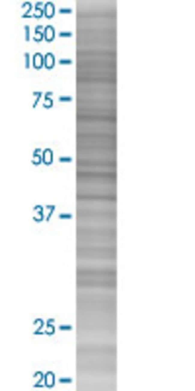 AbnovaGLT28D1 293T Cell Transient Overexpression Lysate (Denatured) 100μL:Protein