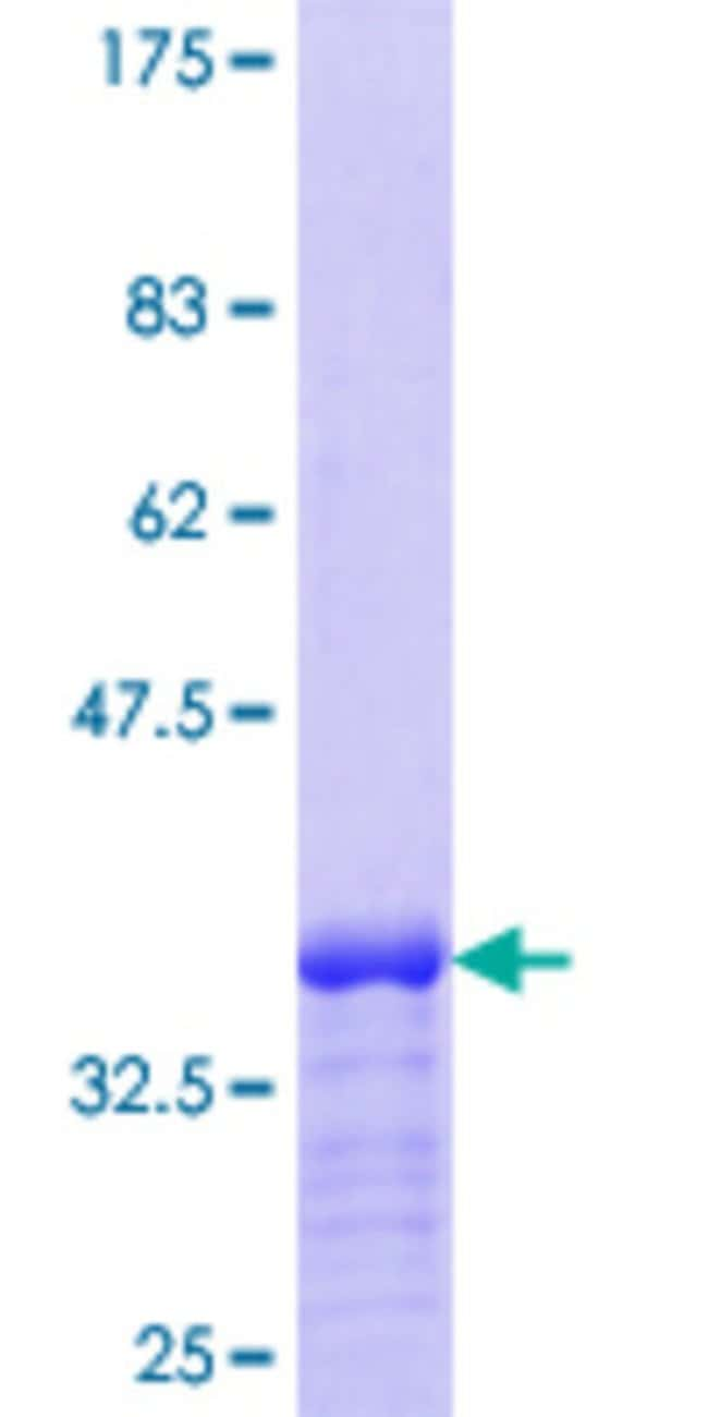 Abnova™ Human BAALC Partial ORF (NP_079088.1, 61 a.a. - 145 a.a.) Recombinant Protein with GST-tag at N-terminal 10μg Abnova™ Human BAALC Partial ORF (NP_079088.1, 61 a.a. - 145 a.a.) Recombinant Protein with GST-tag at N-terminal