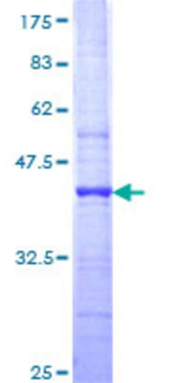 Abnova™Human FLJ23577 Partial ORF (NP_079143, 324 a.a. - 422 a.a.) Recombinant Protein with GST-tag at N-terminal 25μg Abnova™Human FLJ23577 Partial ORF (NP_079143, 324 a.a. - 422 a.a.) Recombinant Protein with GST-tag at N-terminal