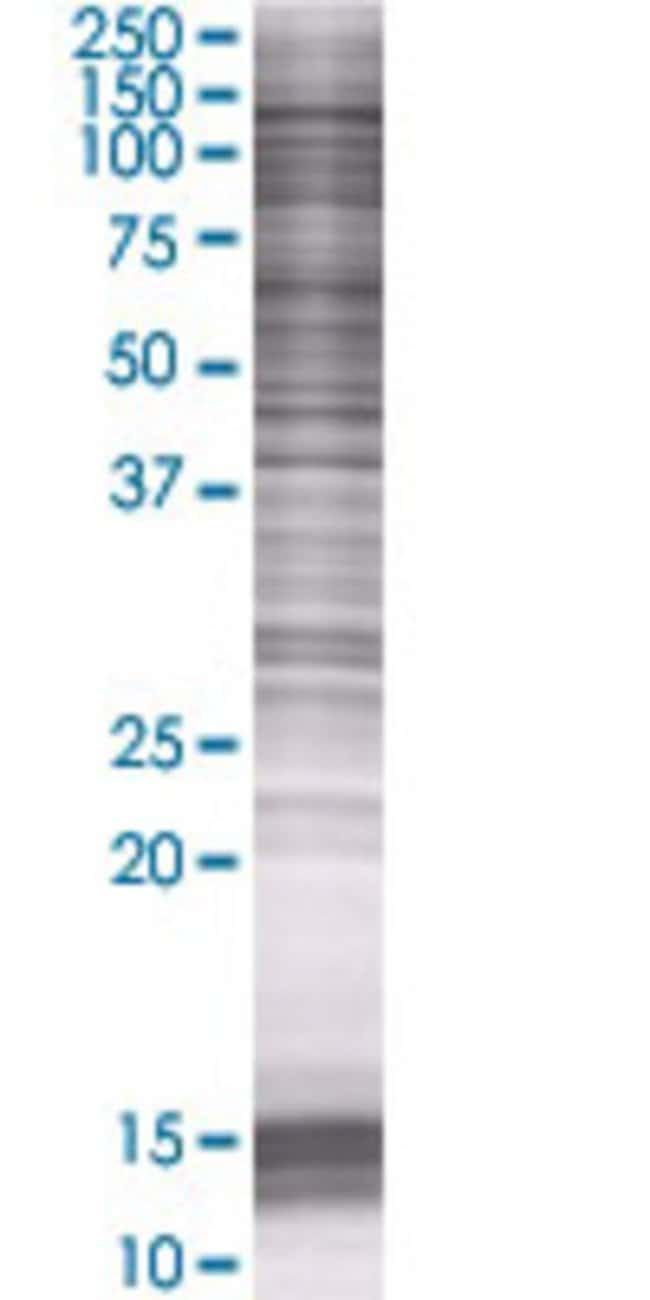 Abnova KIAA0319L 293T Cell Transient Overexpression Lysate (Denatured)