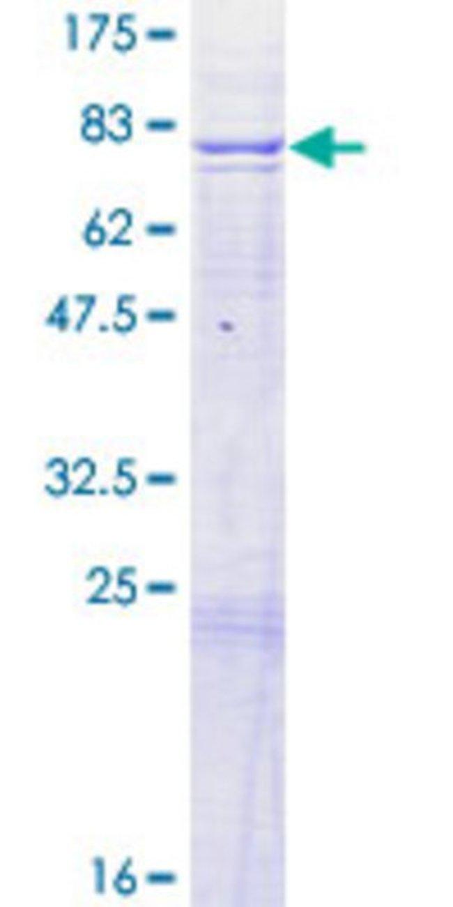 AbnovaHuman ADCK4 Full-length ORF (AAH27473.1, 1 a.a. - 503 a.a.) Recombinant