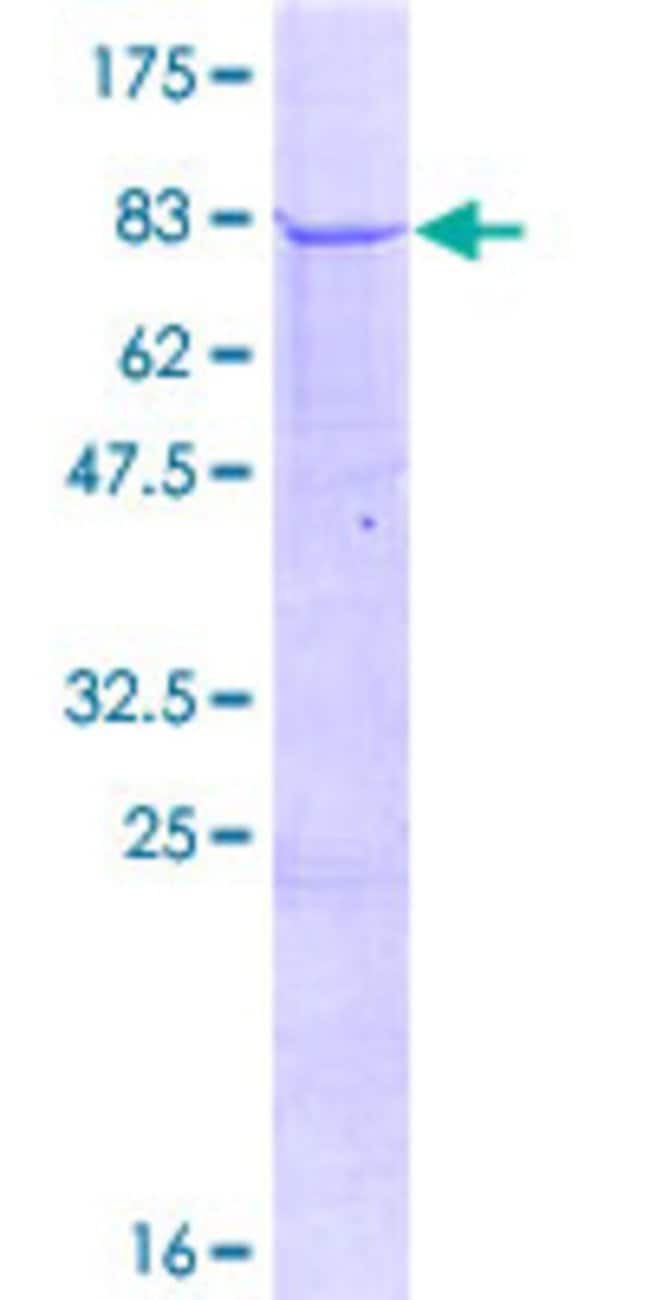 Abnova™Human CXorf34 Full-length ORF (NP_079193.2, 1 a.a. - 504 a.a.) Recombinant Protein with GST-tag at N-terminal 10μg Abnova™Human CXorf34 Full-length ORF (NP_079193.2, 1 a.a. - 504 a.a.) Recombinant Protein with GST-tag at N-terminal