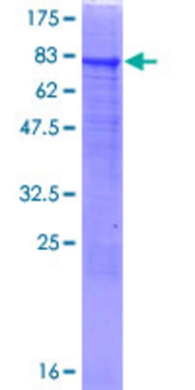 Abnova Human RMI1 Full-length ORF (AAH64937.1, 1 a.a. - 470 a.a.) Recombinant