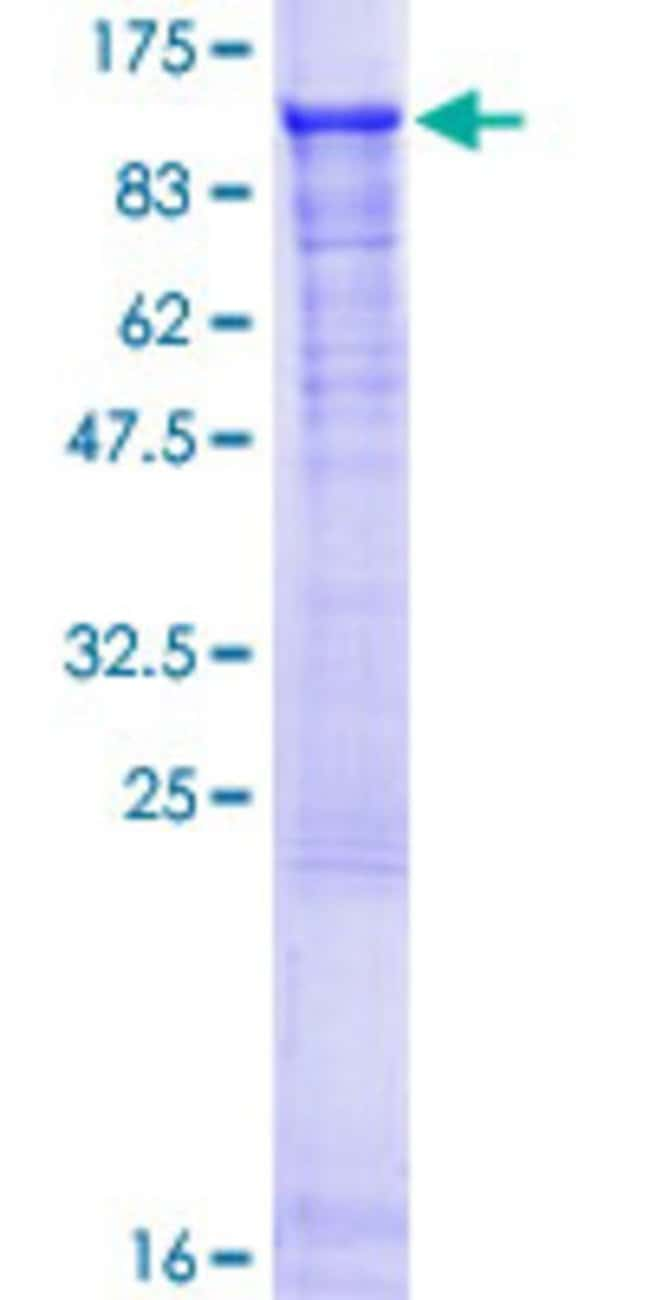 Abnova™Human FAM130A2 Full-length ORF (NP_079245.2, 1 a.a. - 585 a.a.) Recombinant Protein with GST-tag at N-terminal 10μg Abnova™Human FAM130A2 Full-length ORF (NP_079245.2, 1 a.a. - 585 a.a.) Recombinant Protein with GST-tag at N-terminal
