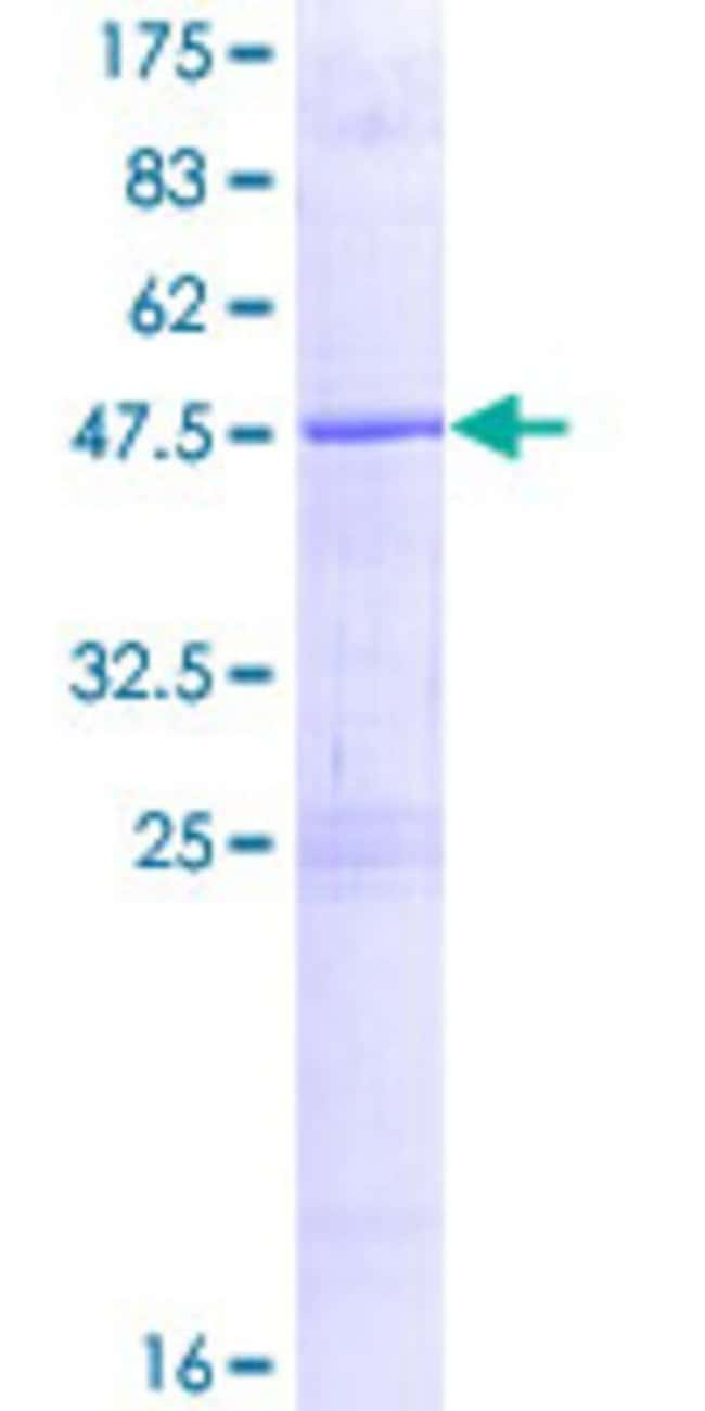 Abnova™Human ZNF614 Full-length ORF (ENSP00000348674, 1 a.a. - 198 a.a.) Recombinant Protein with GST-tag at N-terminal 10μg Abnova™Human ZNF614 Full-length ORF (ENSP00000348674, 1 a.a. - 198 a.a.) Recombinant Protein with GST-tag at N-terminal
