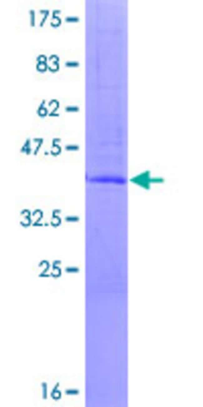 Abnova Human C1orf22 Full-length ORF (AAH16464.1, 1 a.a. - 122 a.a.) Recombinant